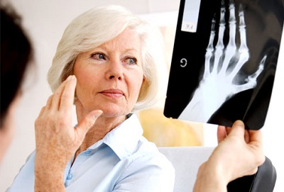 The two most common forms of arthritis